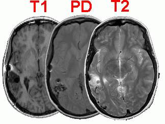Tutorial for MRIcro medical image freeware